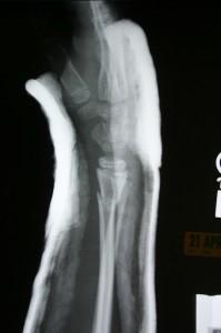 broken-wrist-xray