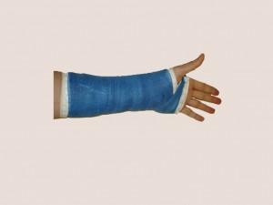 fiberglass-cast-left-wrist
