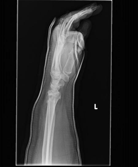 broken wrist x-ray in cast
