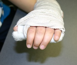 stiff fingers in a cast